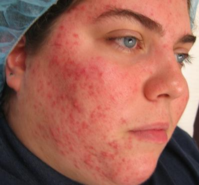 аллергия высыпания на теле